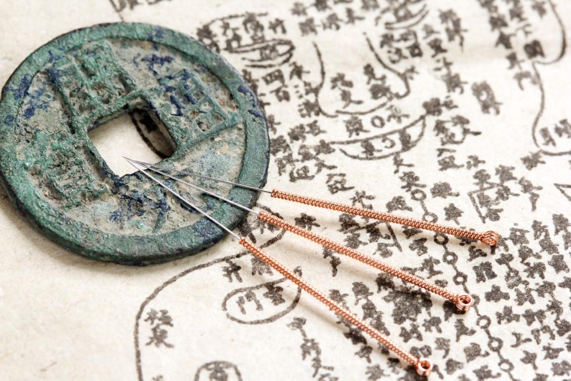 aiguilline d'acupuncture